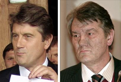 Viktor Yushenko Before and after he was poisoned by Dioxin, First they tried to steal the election from him, then they tried to kill him, they failed both times from Dec. 8, 2004
